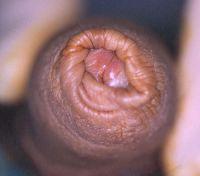 lichen-sclerosus