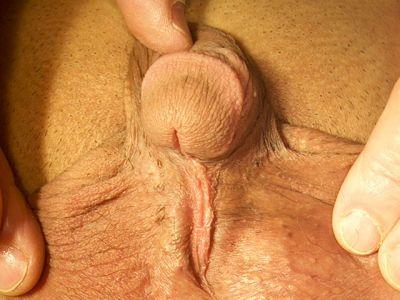 Ipospadia posteriore