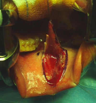 Stenosi uretrale - ricotrauzone dalla mucosa buccale