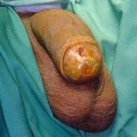 Lichen sclerosus - displasie del glande o tumore del pene