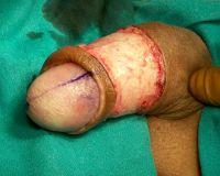 Terapia chirurgica del Lichen sclerosus