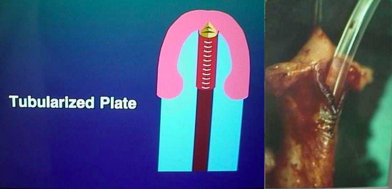 Ipospadia vergine - Tubolarizzazione del piatto uretrale a formare la neo uretra.