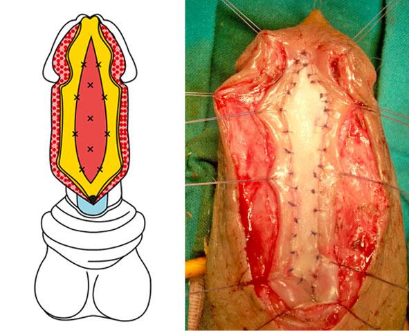 Ipospadia complicata - innesto di tessuto