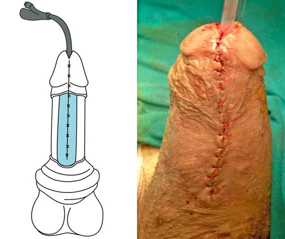 Ipospadia complicata - ricostruzione del pene e del glande