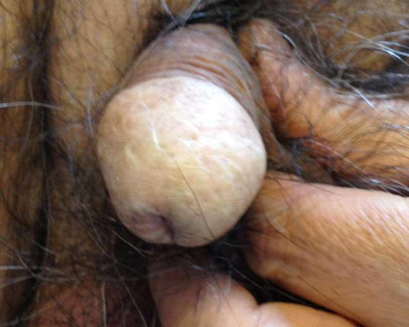 Tumore del pene - ricostruzione pene
