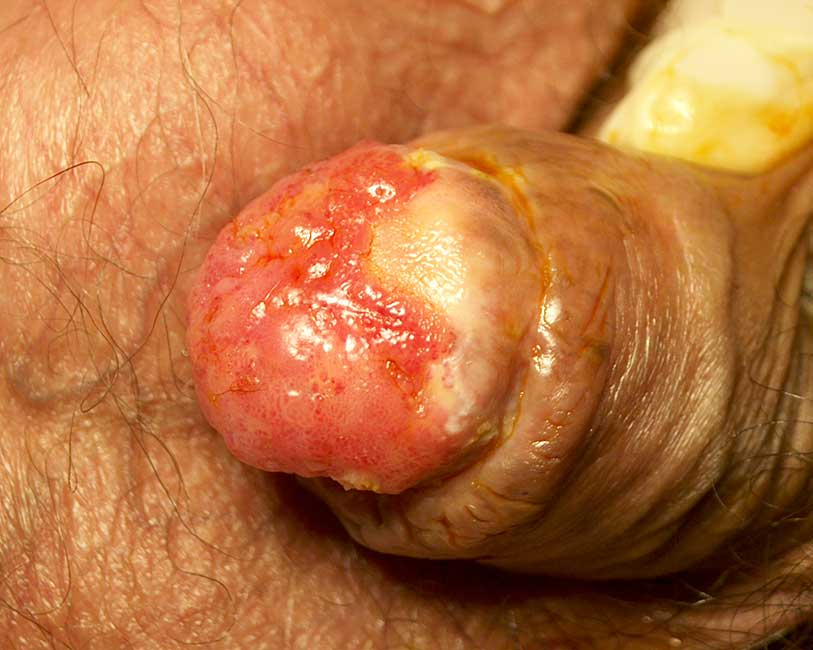 Tumori del pene