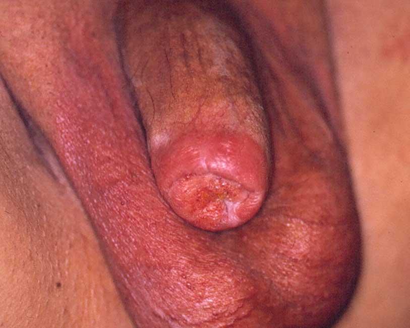 Tumore del pene
