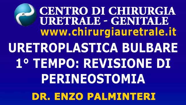 Revisione complessa di uretrostomia perineale