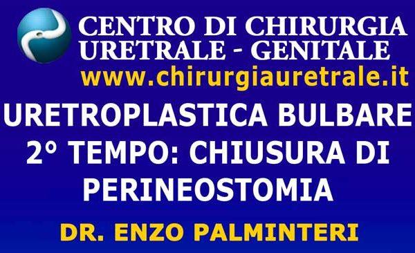 Uretroplastica bulbare 2° tempo: chiusura di perineostomia