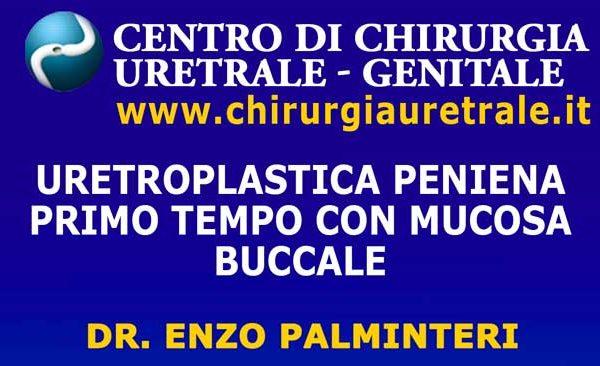 Uretroplastica peniena primo tempo con mucosa buccale