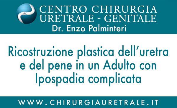 Ricostruzione plastica dell'uretra e del pene in un Adulto con Ipospadia complicata