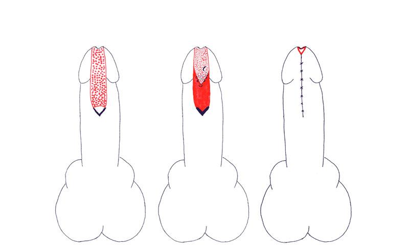 Riparazione stenosi uretra peniena causata da lichen sclerosus - secondo tempo