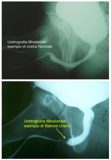 Uretrografia Minzionale per diagnosticare la stenosi uretrale