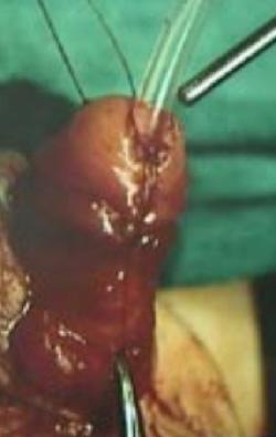 Ricostruzione del glande e del meato uretrale